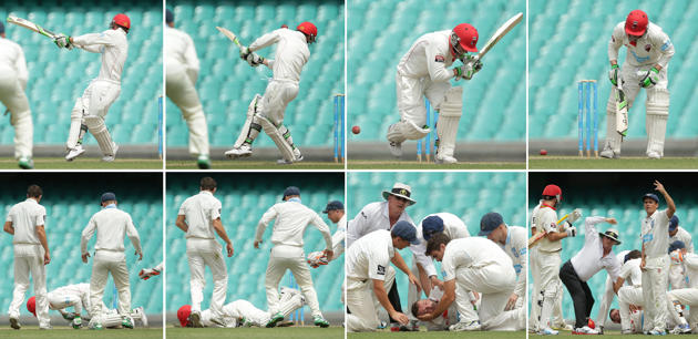 Phillip Hughes died due to sports accident